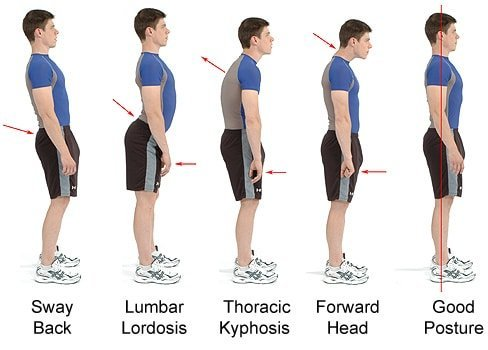 Best Posture Correction Treatment in Malaysia