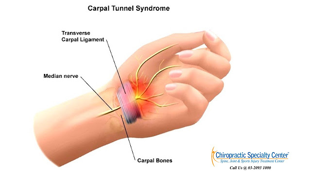 How to Evaluate and Diagnose Carpal Tunnel Syndrome